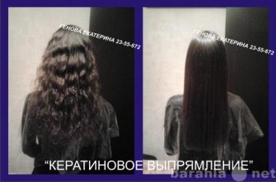Лечение выпадение волос гомеопатией при красной волчанке